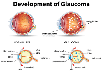Glaucoma, Glaucoma Awareness Month