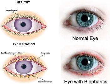 normal eye and eye with blepharitis illustration